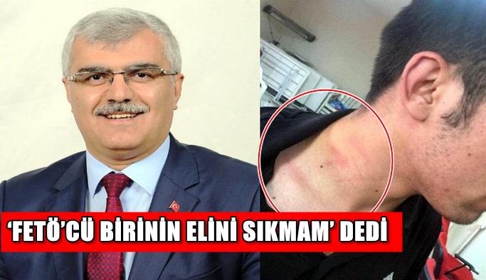 AK Parti'li vekil tartıştığı CHP'li gencin boğazını sıktı, sonra özür diledi