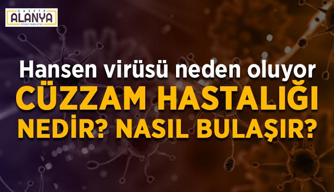 Hansen virüsü neden oluyor: Cüzzam Hastalığı nedir?