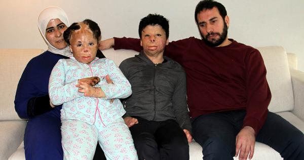 Suriyeli yaralı kardeşlere Antalya\\\'da  şifa
